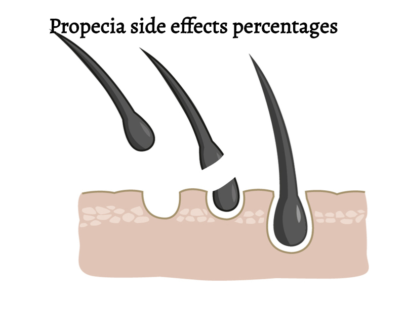 Propecia side effects percentages