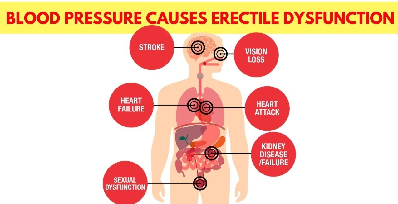 High Blood Pressure causes Erectile Dysfunction