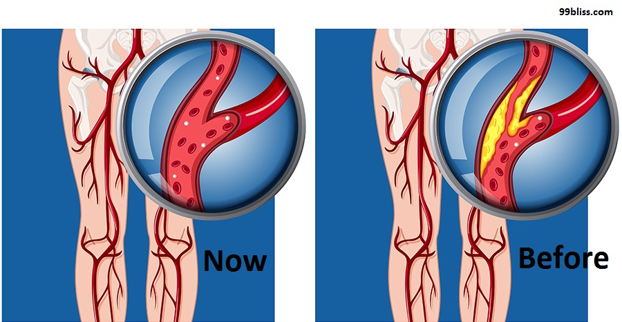 Erectile Dysfunction and Vascular Disease Treatment