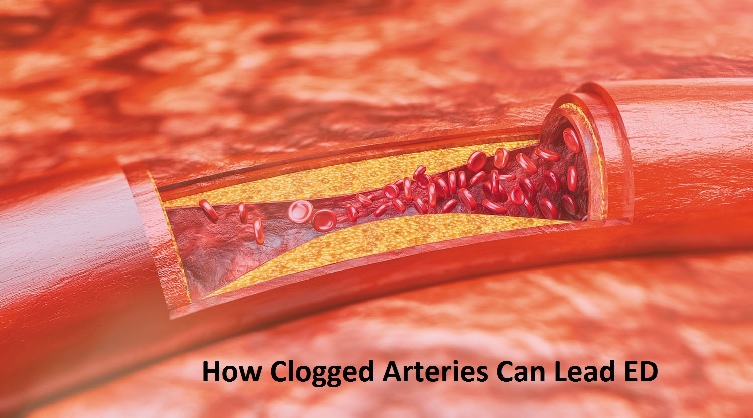 How Clogged Arteries Can Lead ED
